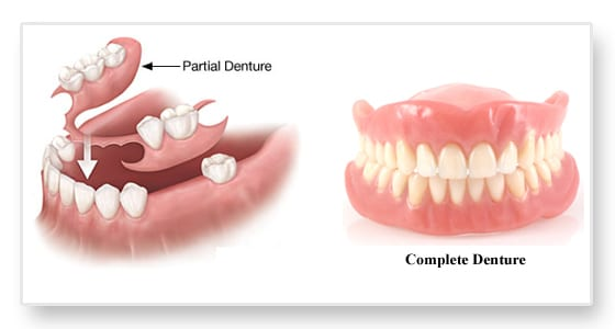 Partial-Denture-and-Complete-Denture.jpg
